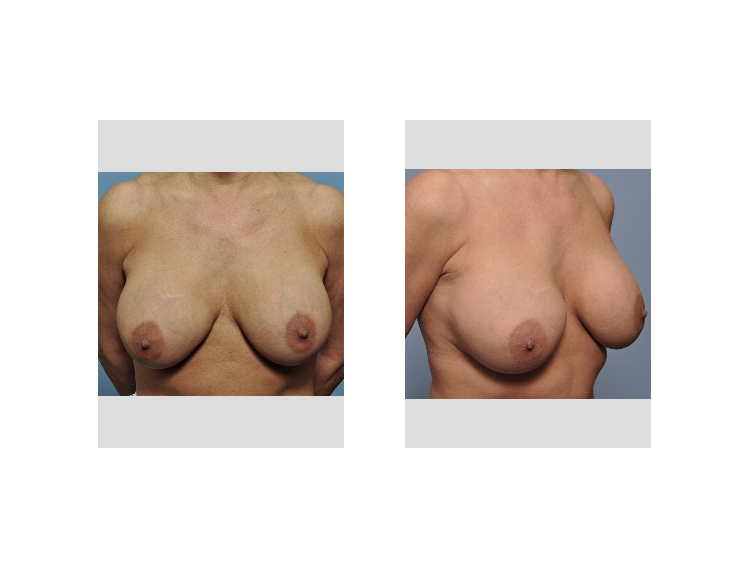 Silicone Implant Study 2