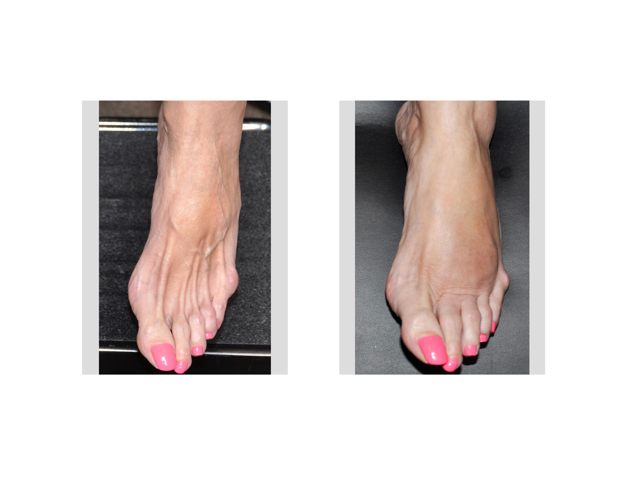 Foot Plastic Surgery