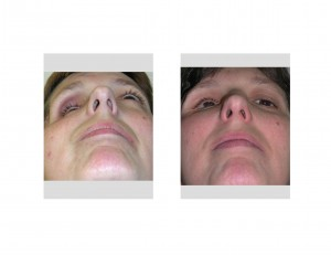 multiple facial jaw fractures Disloacted and