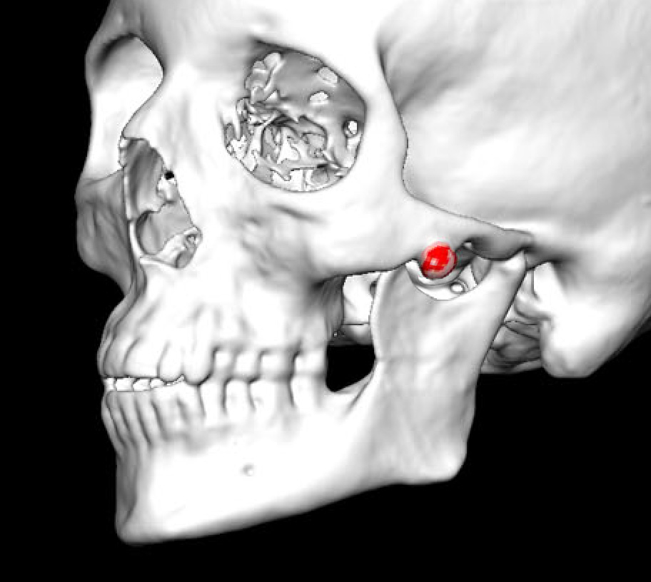 Blog ArchiveCase Study: Computer-Generated Implant Reconstruction of ...