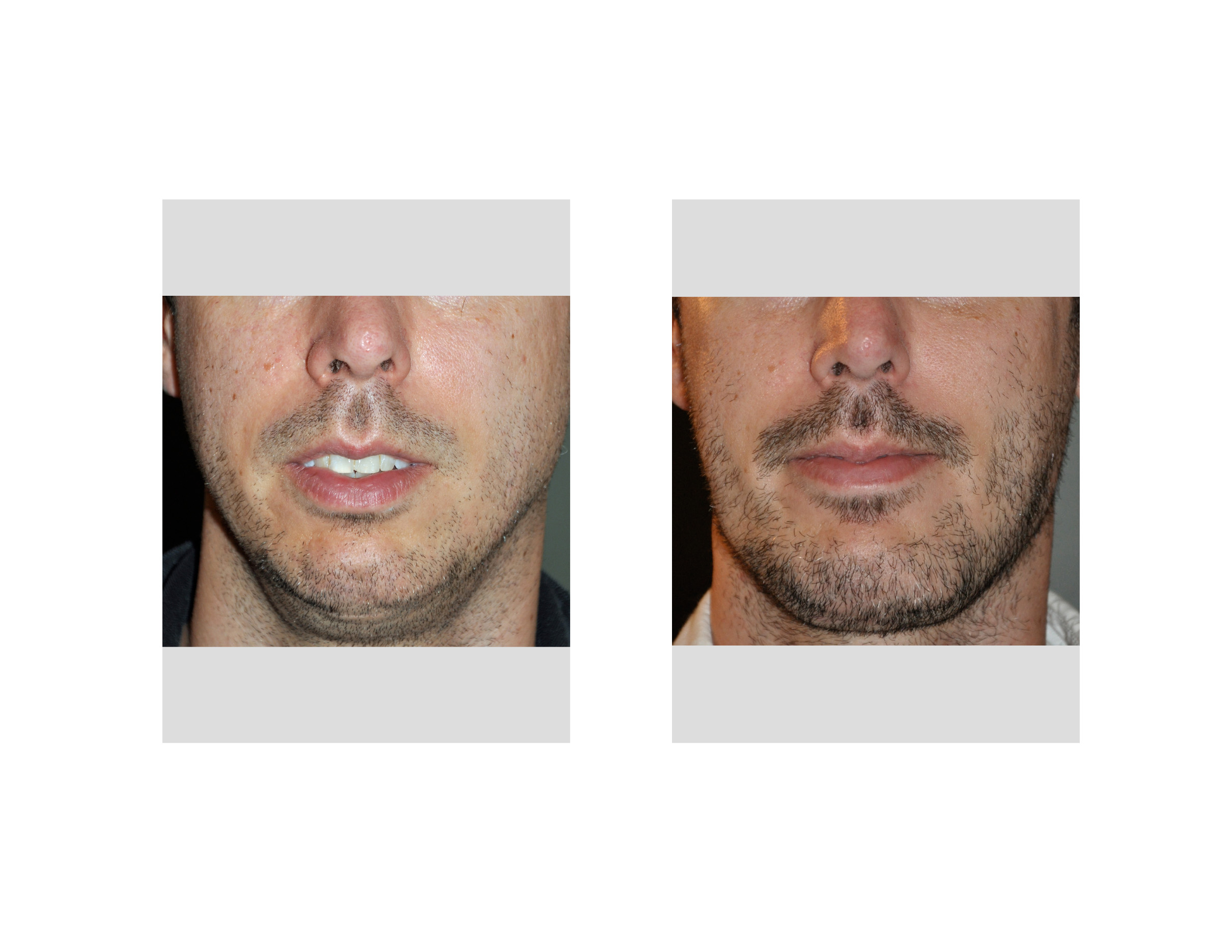 [Image: Jawline-Implants-result-front-view-Dr-Ba...apolis.jpg]