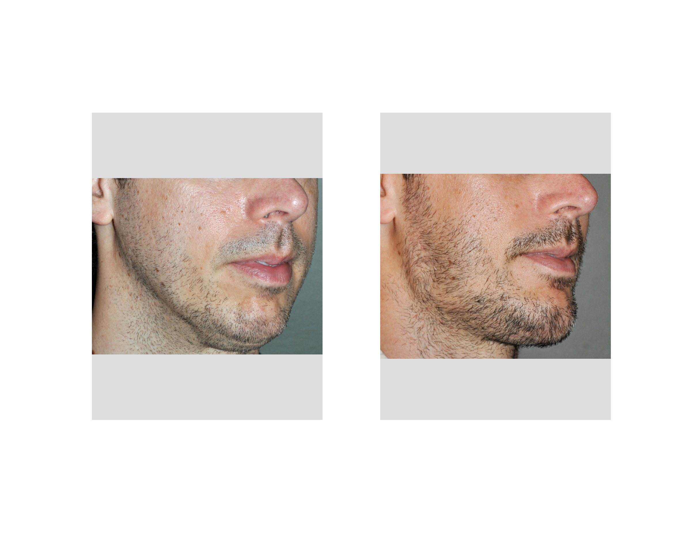 [Image: Jawline-Implants-result-oblique-view-Dr-...apolis.jpg]