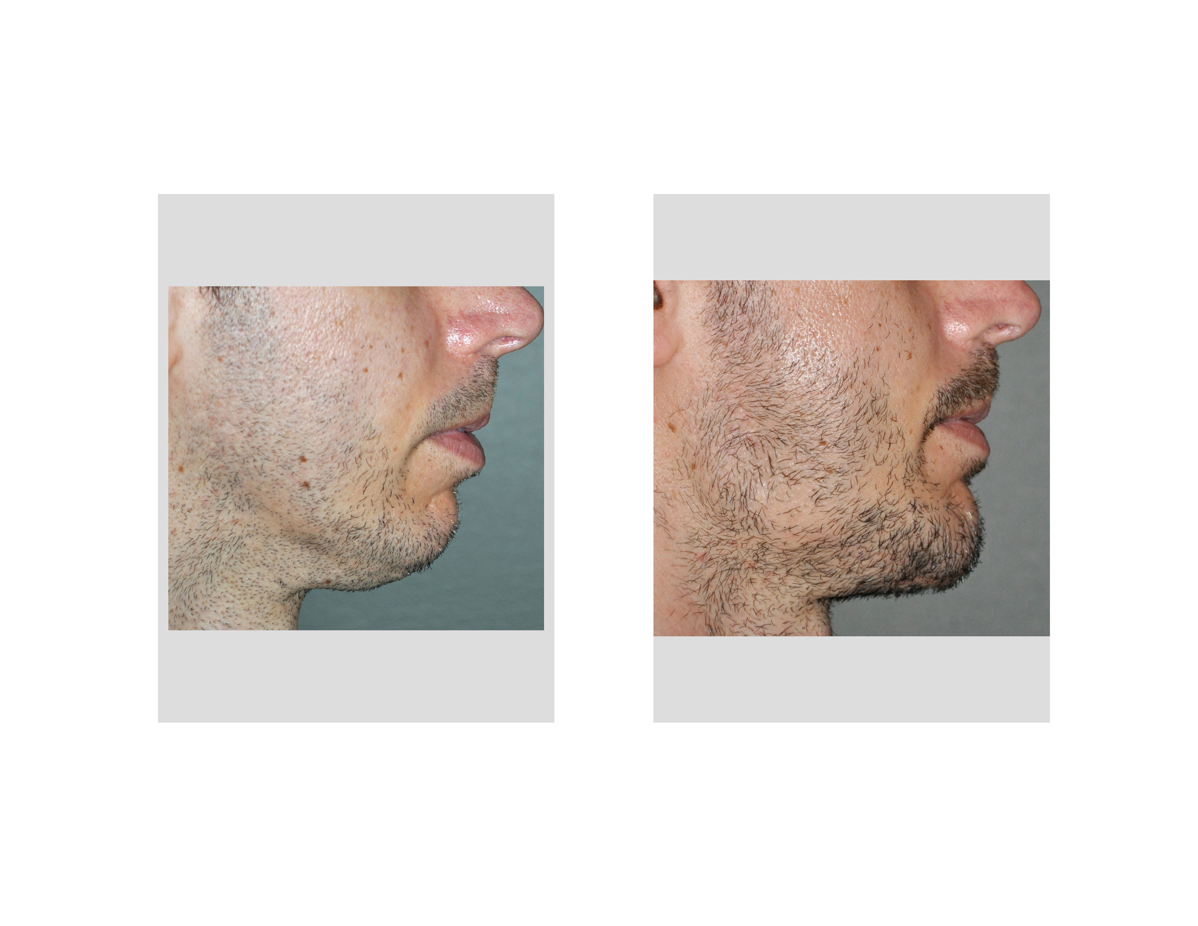 [Image: Jawline-Implants-result-side-view-Dr-Bar...apolis.jpg]