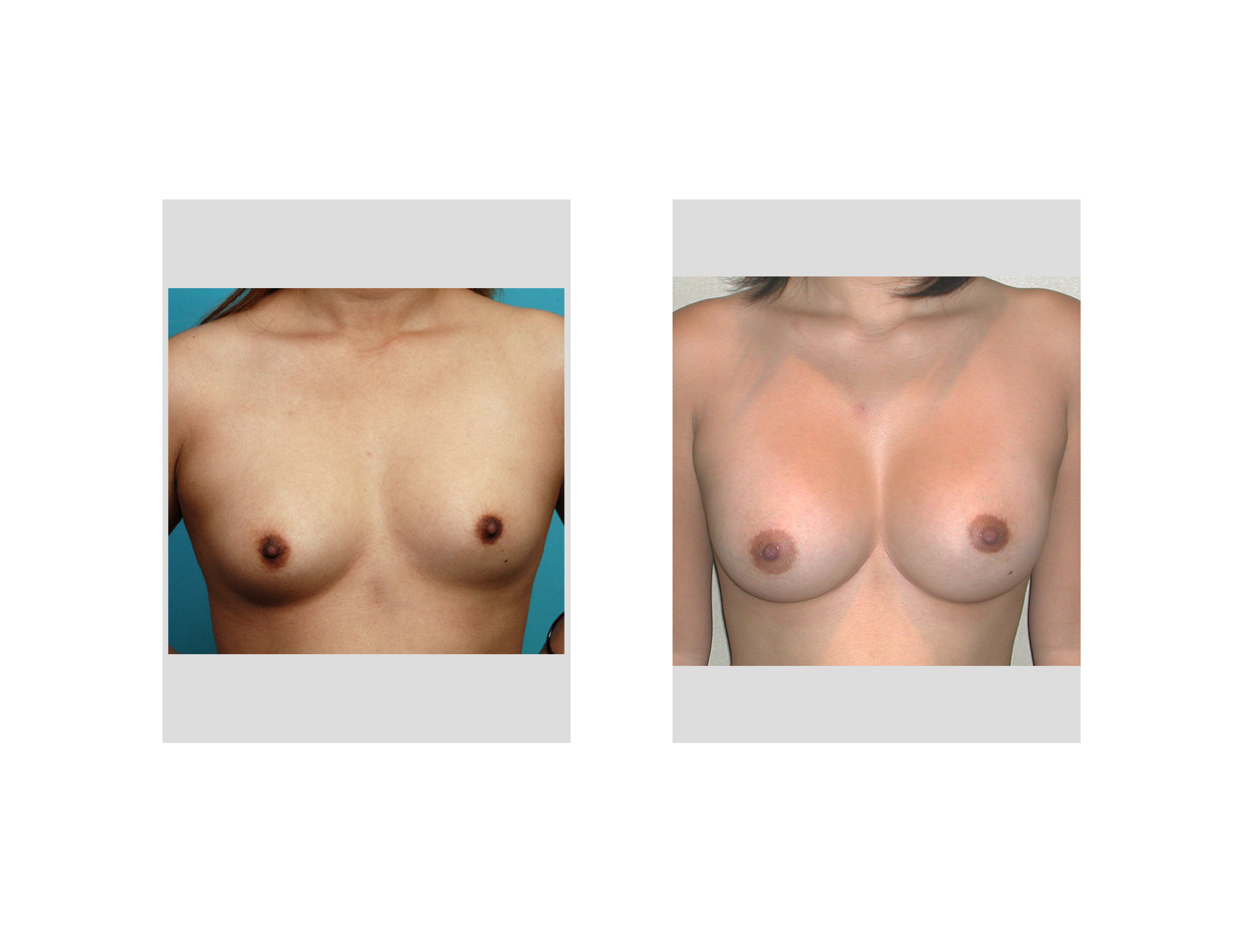 breast augmentationnegative resultsassymetrical