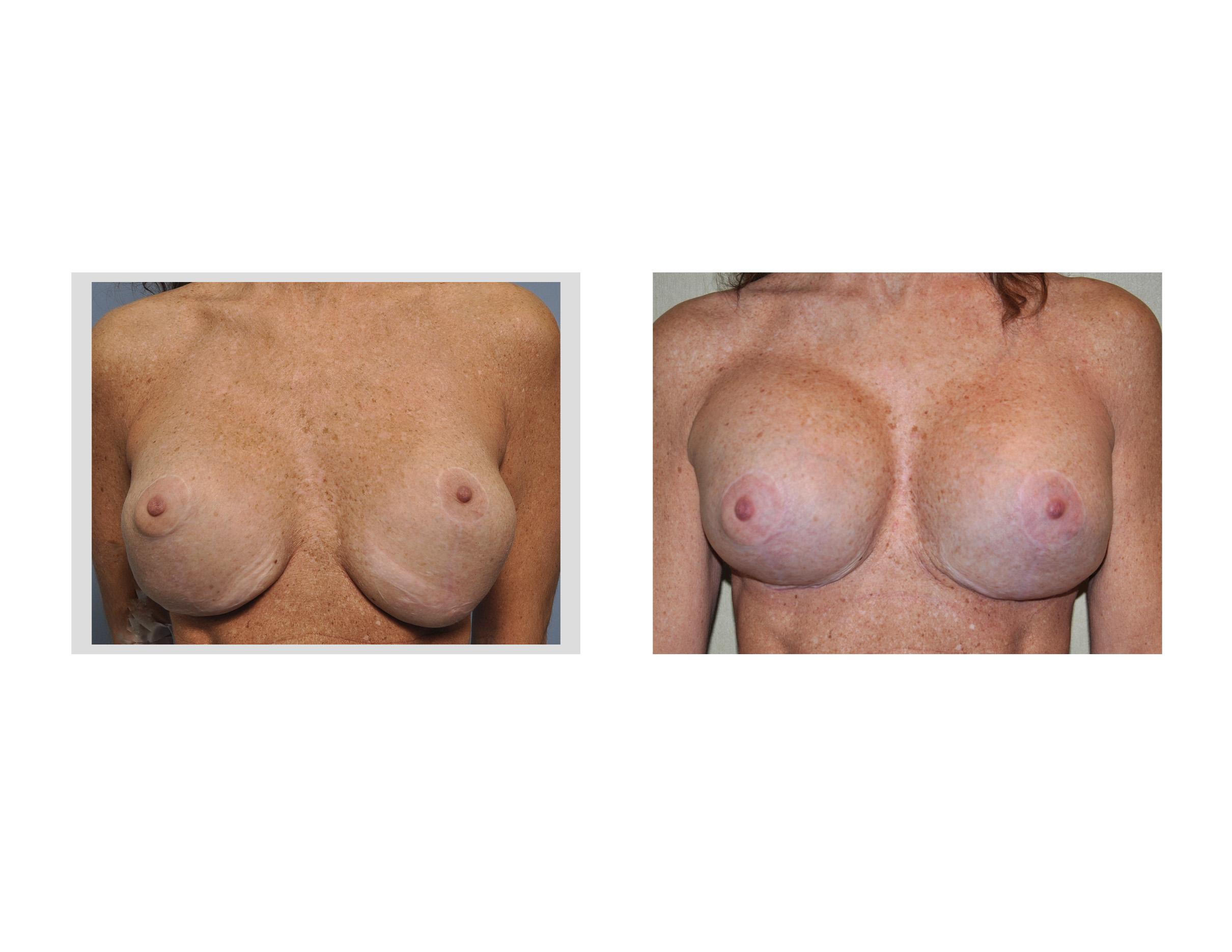 breast transplant surgery