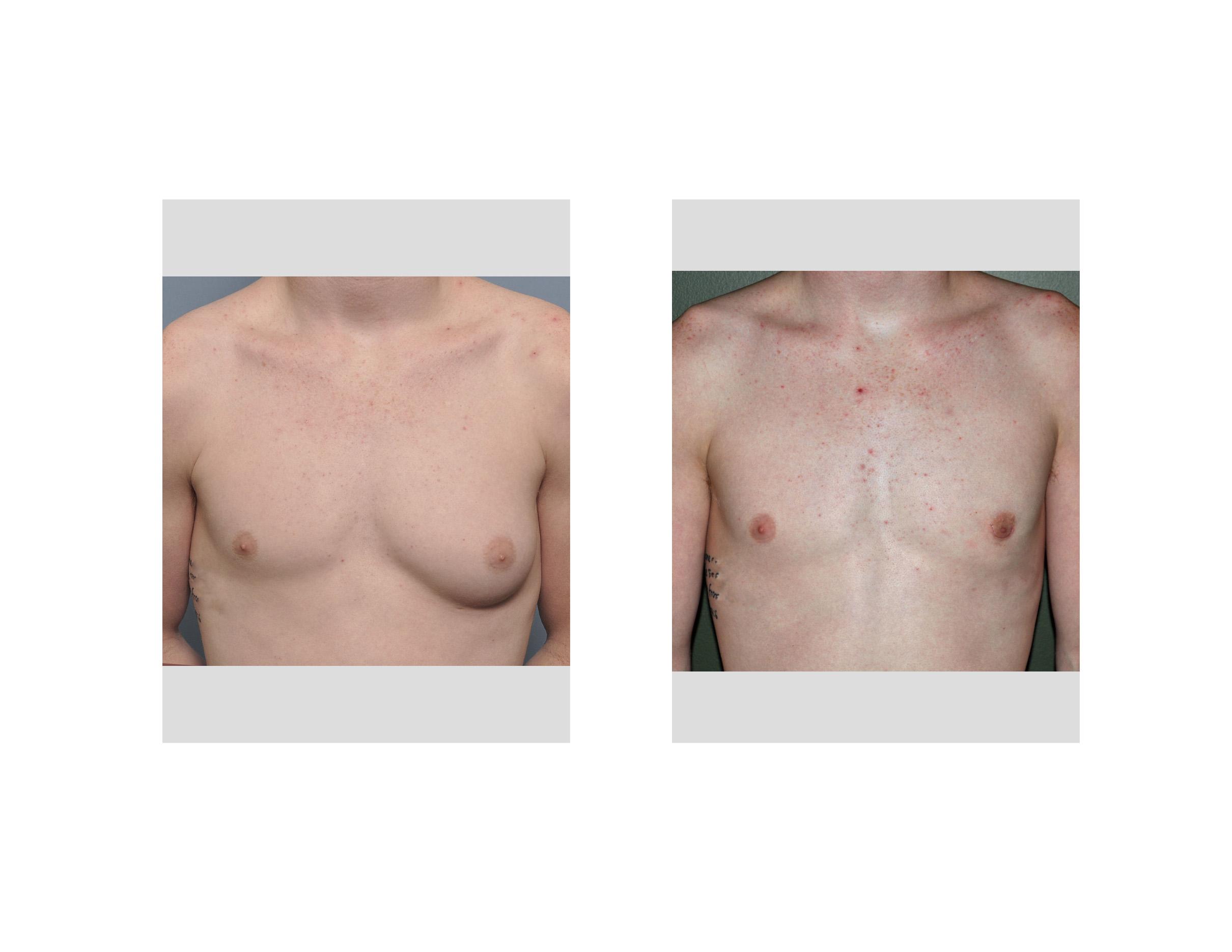 large breast tumors