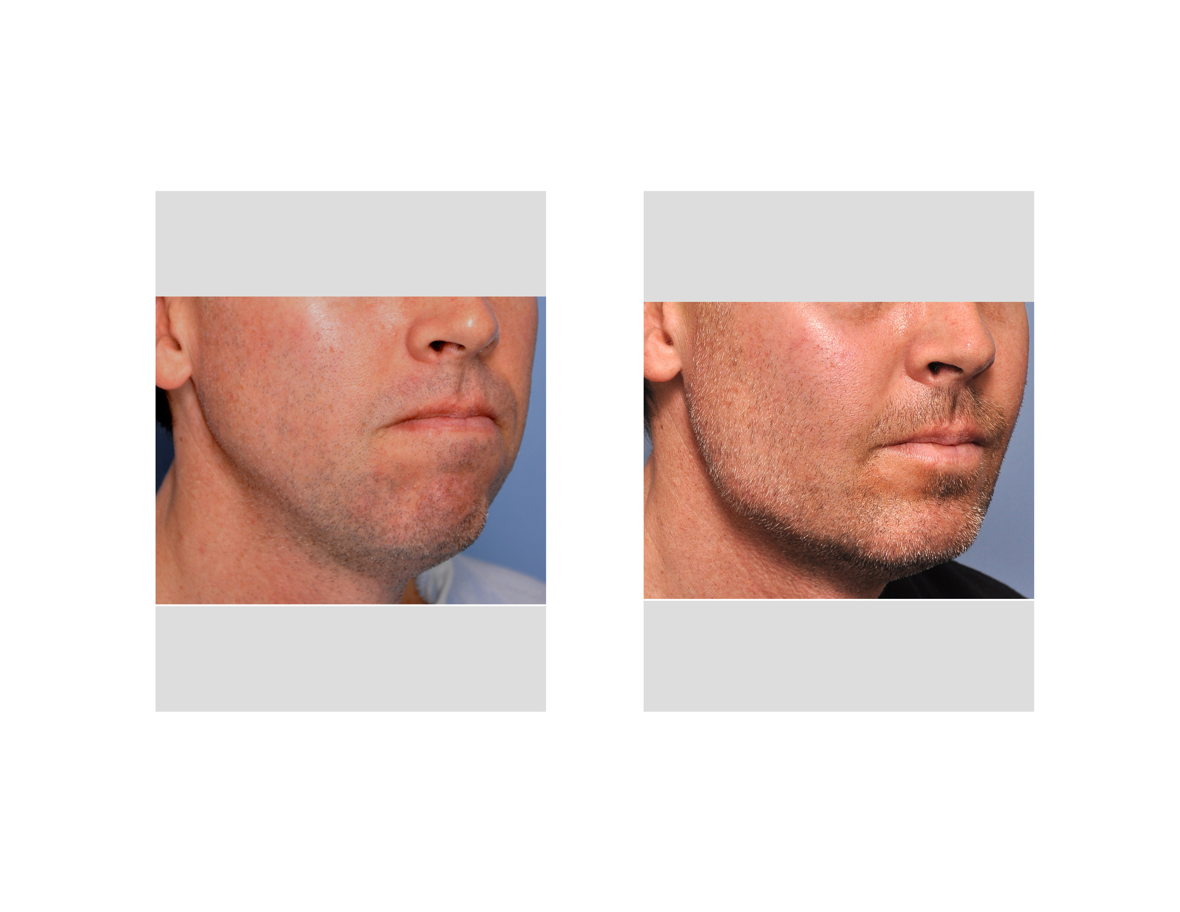 [Image: Eppley-Jaw-Angle-Augmentation-result-rig...e-view.jpg]