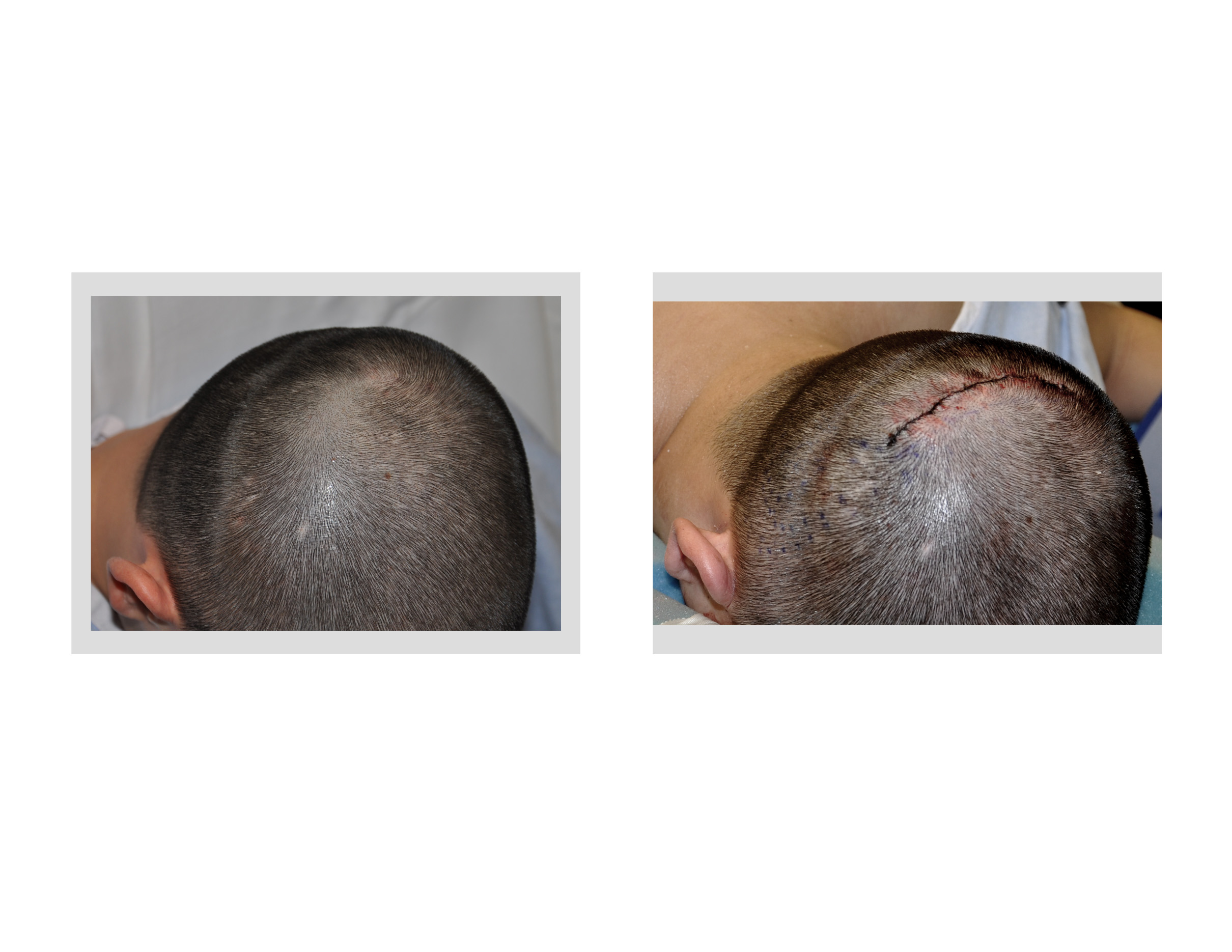 - Small-Incision-Occipital-Cranioplasty-right-oblique-view-Dr-Barry-Eppley-Indianapolis