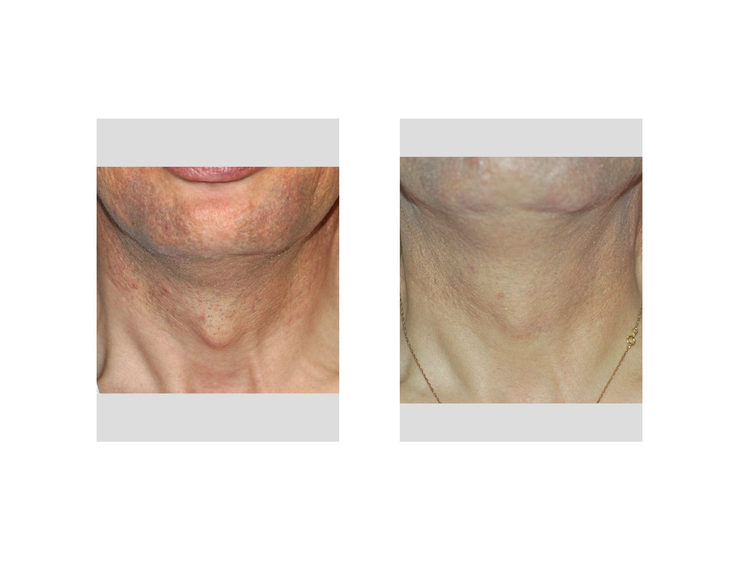 blog archiveconsent for plastic surgery tracheal shave adam s