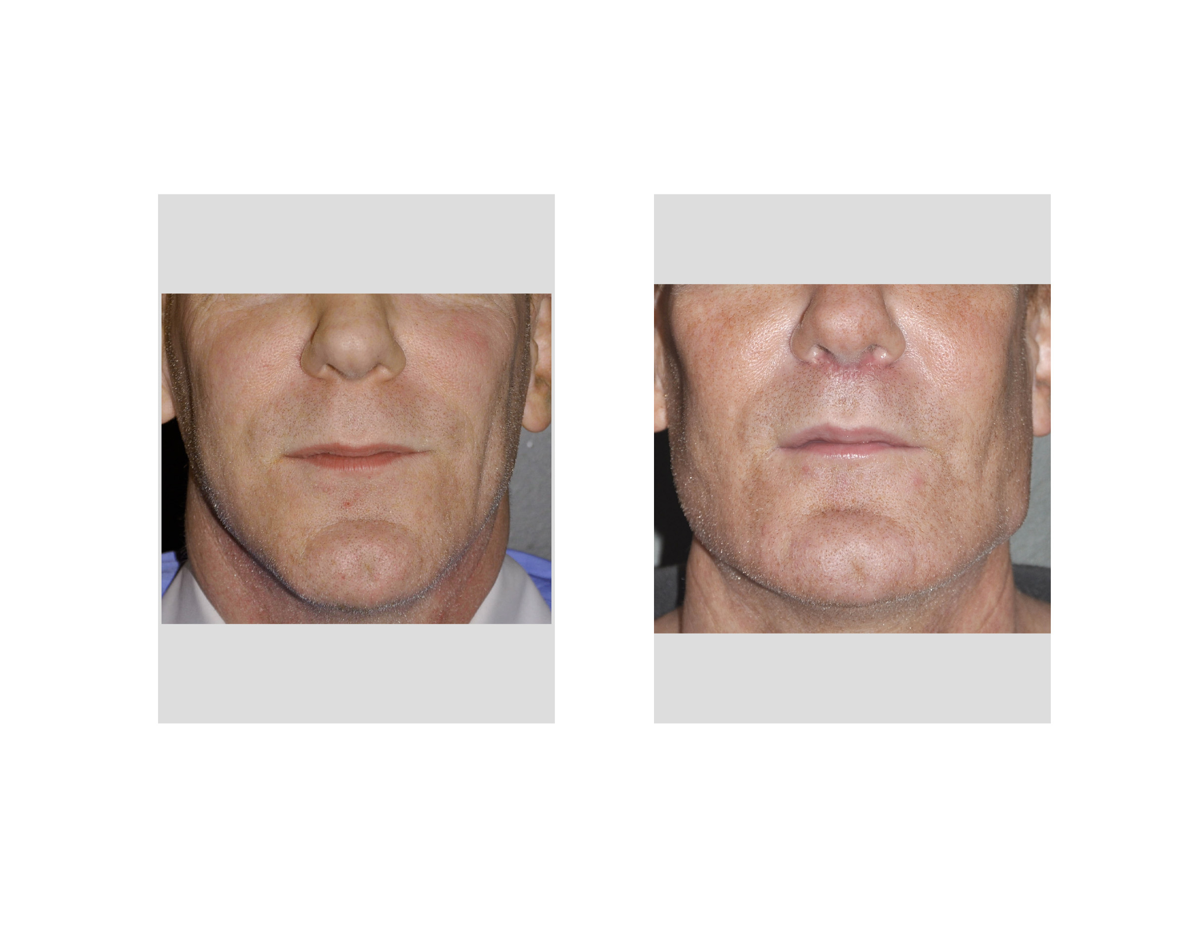 [Image: Extreme-Jawline-Augmentation-front-view-...apolis.jpg]