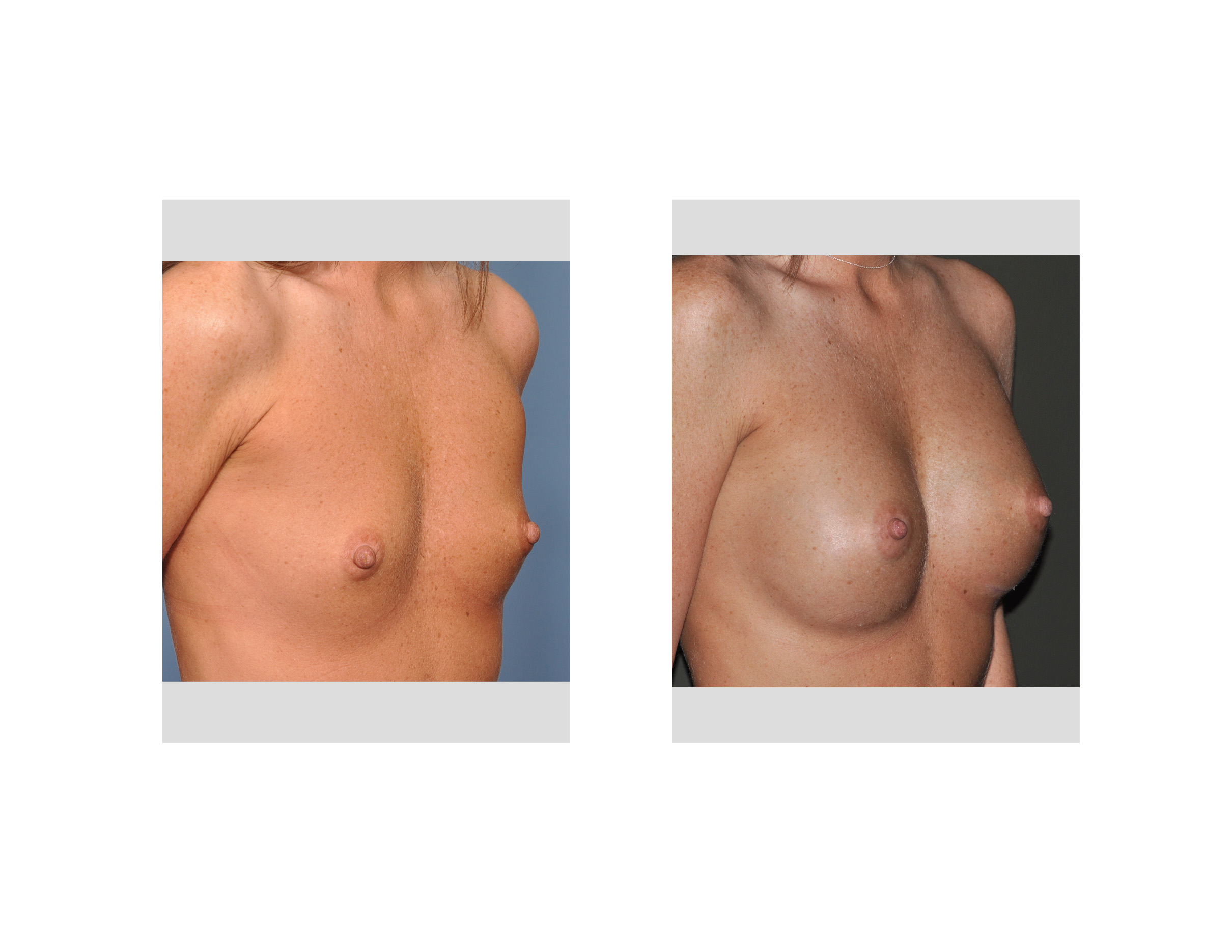 for breast doctor
