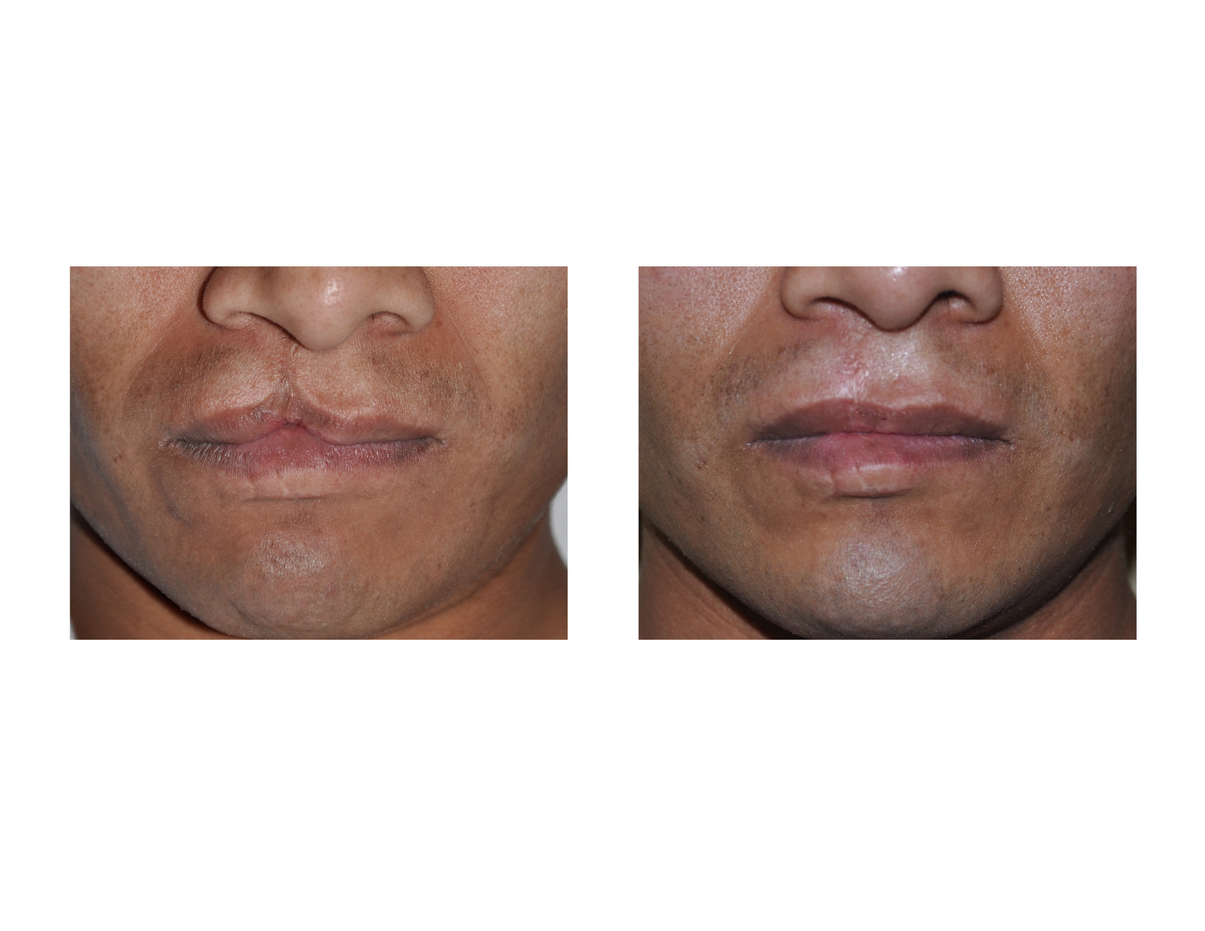 adult and repaired cleft lip