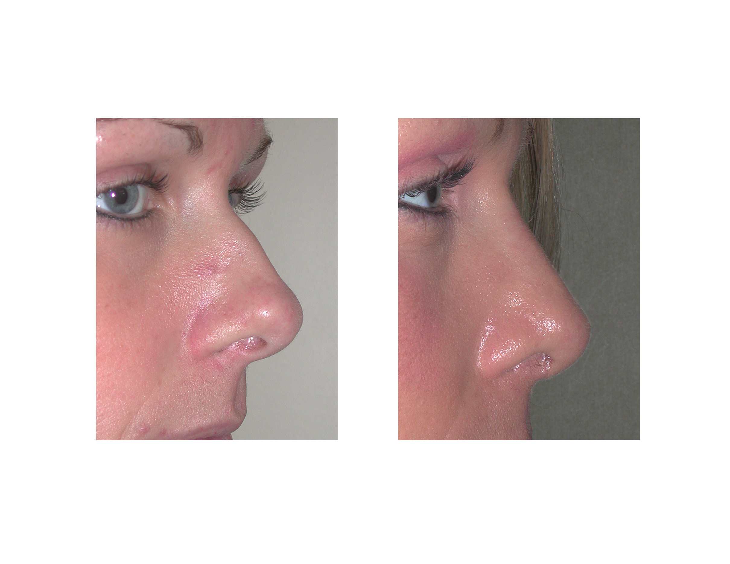 Case Study: Rhinoplasty for the Boxy Tip - Explore Plastic Surgery