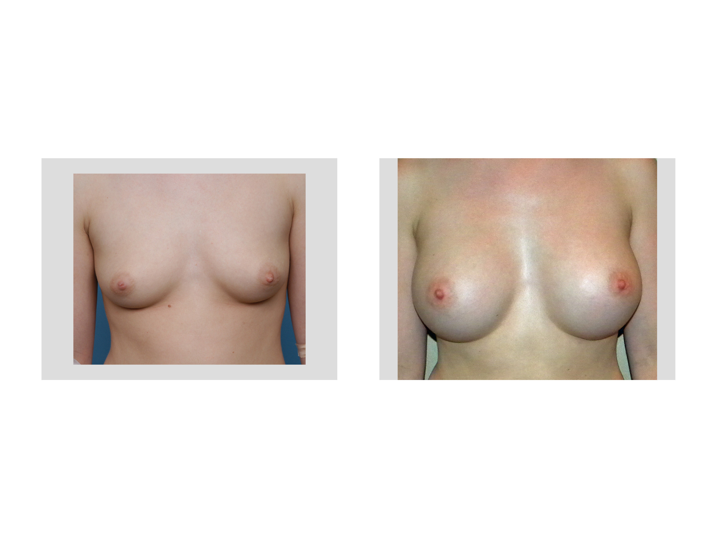 Opinion you bilateral breast buds