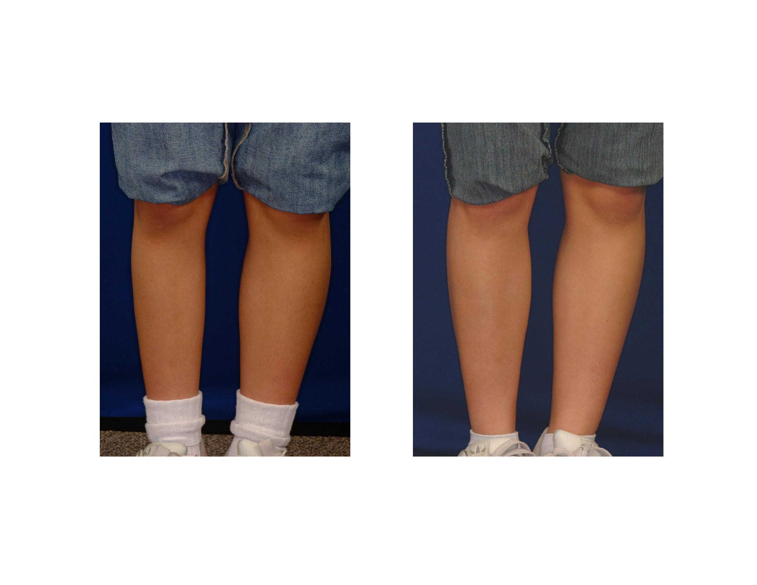 calf augmentation Archives