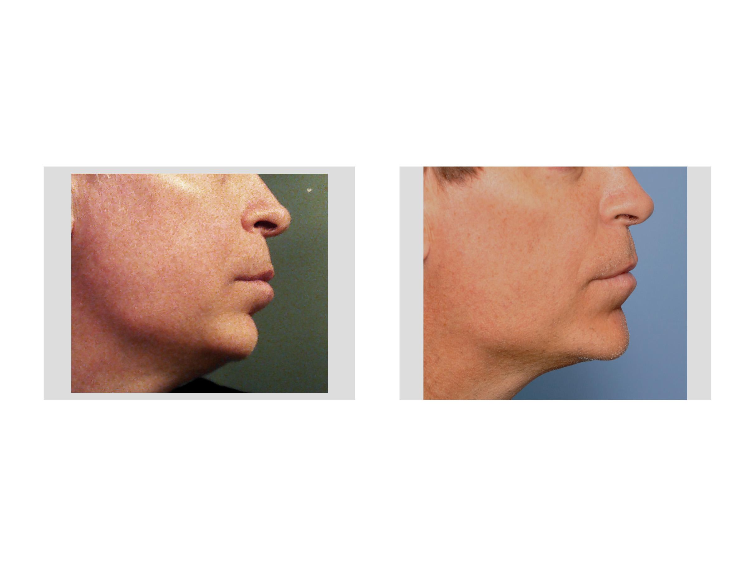Alloplastic implant to facial bone