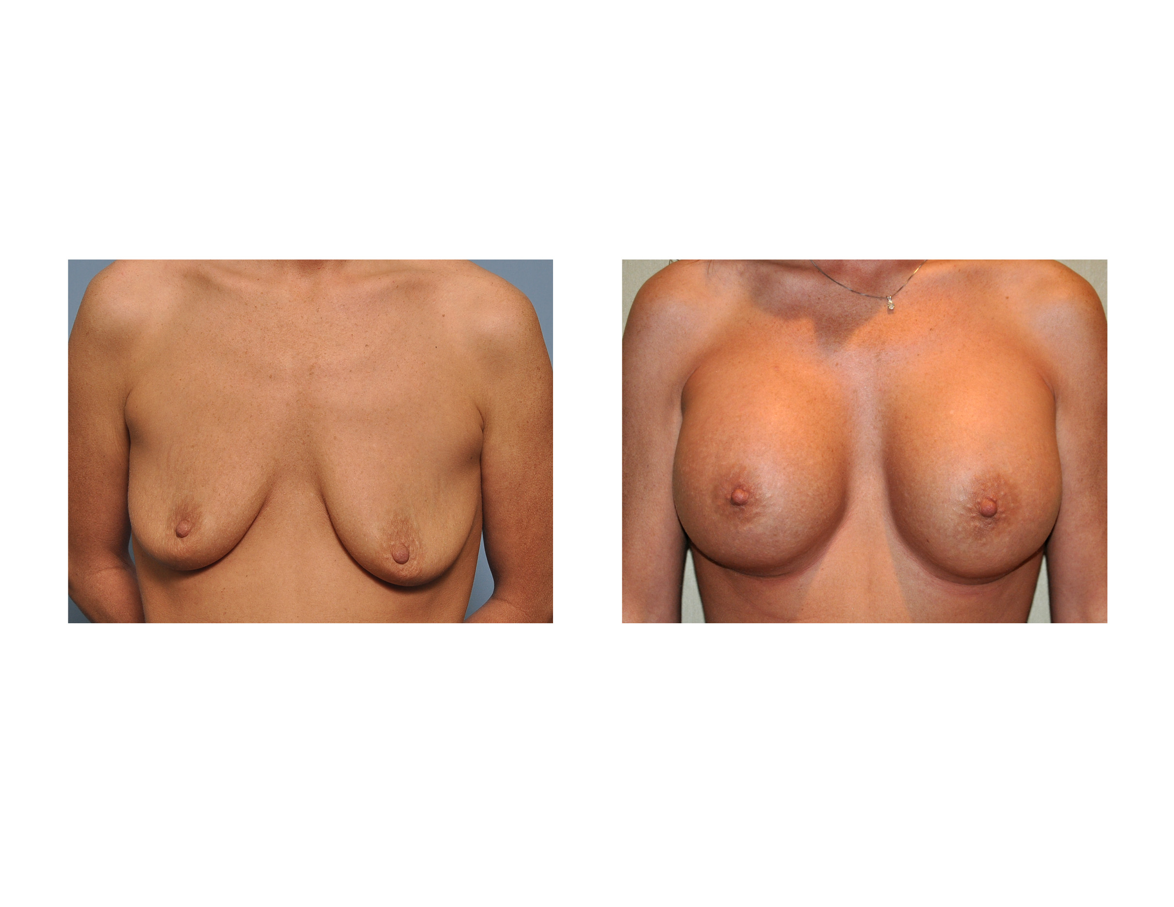 Breast Sizes And Shapes Pictures Her Breast Size And Shape