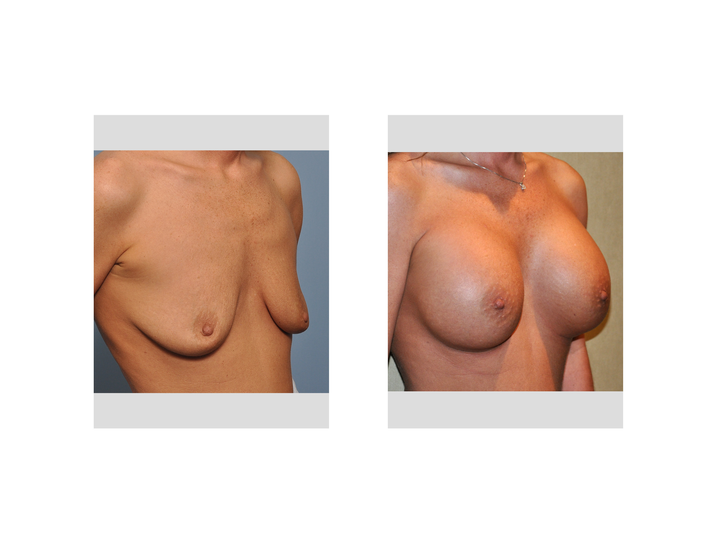 shaped breast implants