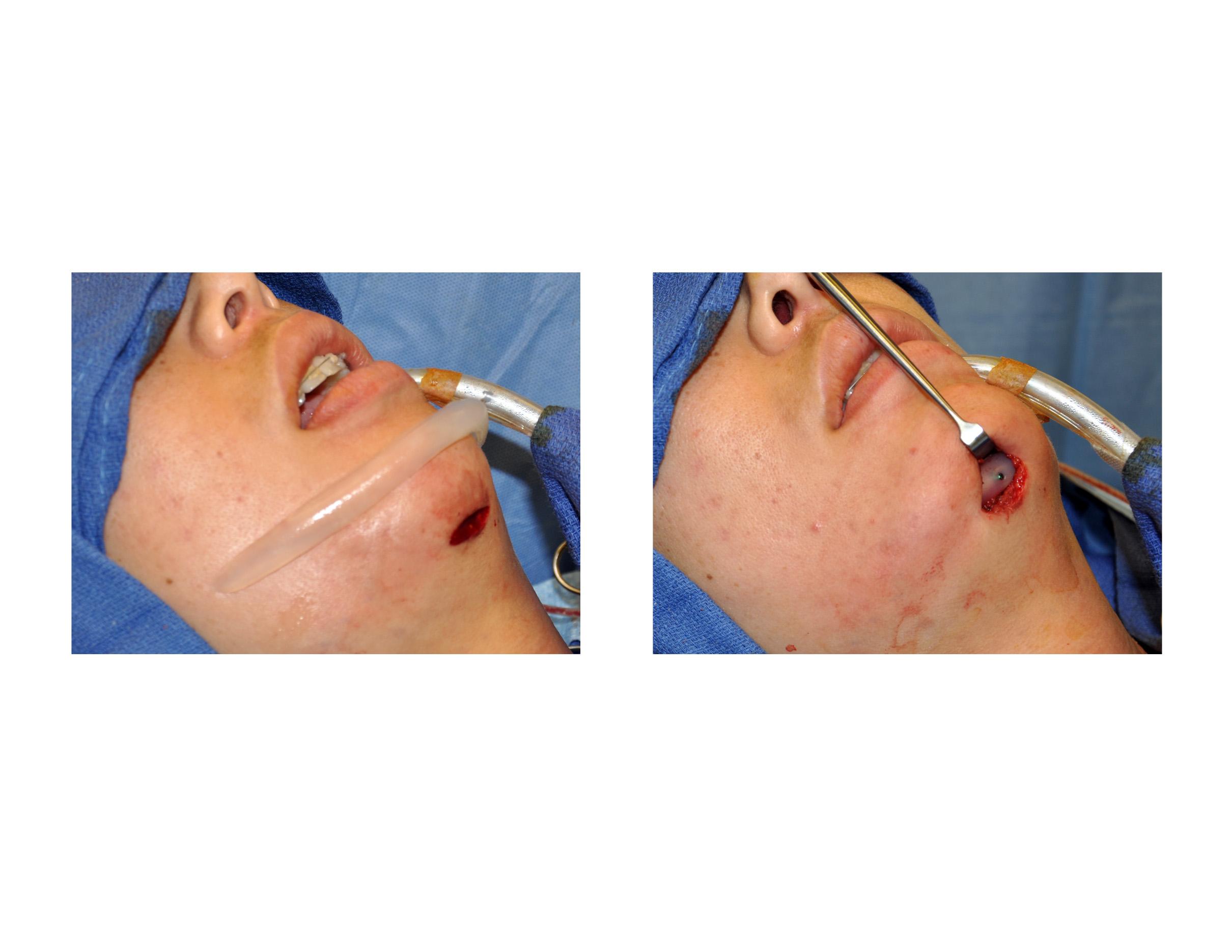 Case Study: Female Jawline Implant Augmentation - Explore