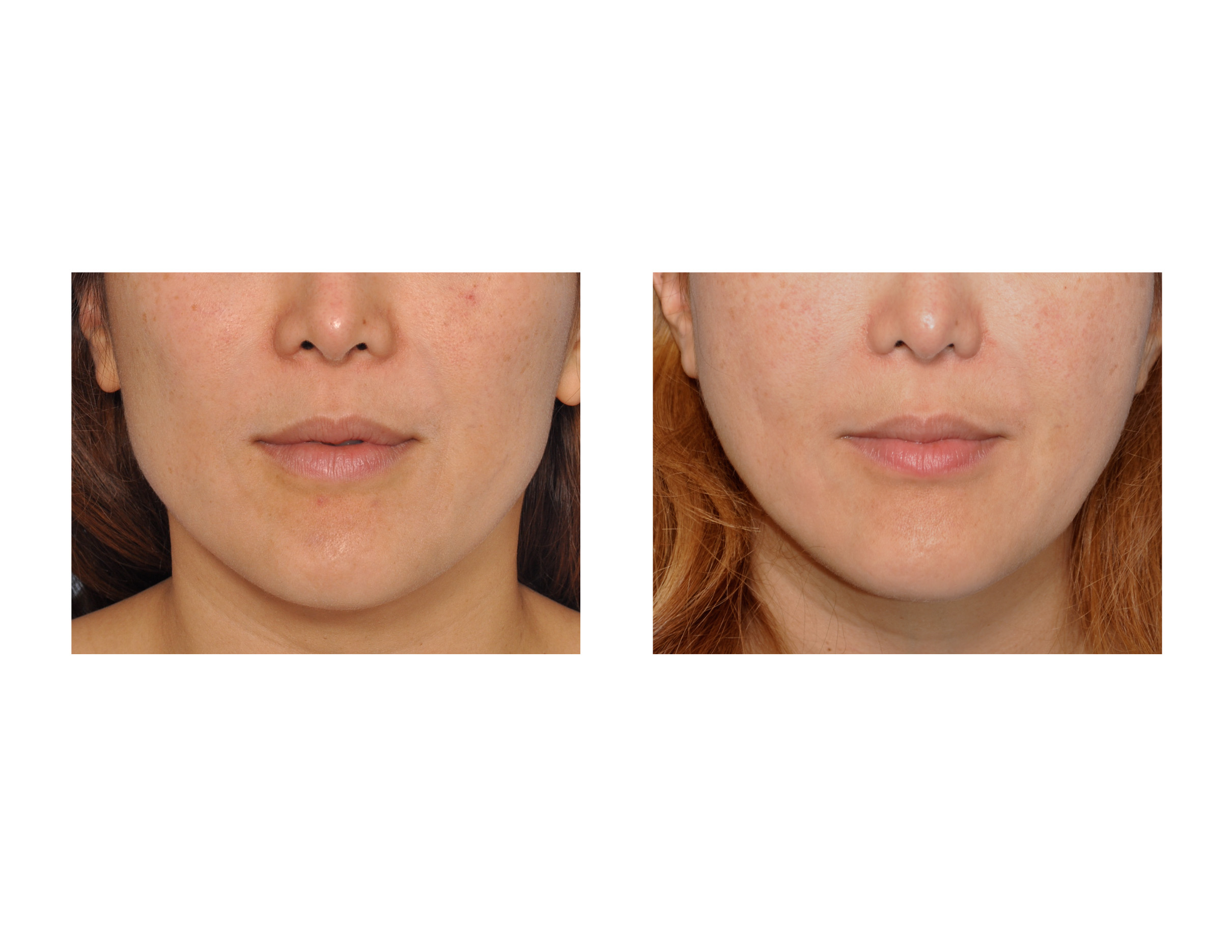 botox in the jaw before and after