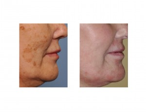 Brown Spot Laser Removal result side view Dr Barry Eppley Indianapolis