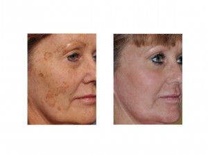 Brown Spot Laser Removal results oblique view Dr Barry Eppley Indianapolis