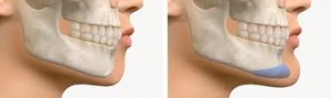 Chin Implant Augmentation Indianapolis Dr Barry Eppley