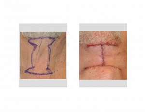 Direct Necklift Incision pattern Dr Barry Eppley Indianapolis
