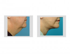 Facelift Dr Barry Eppley Indianapolis