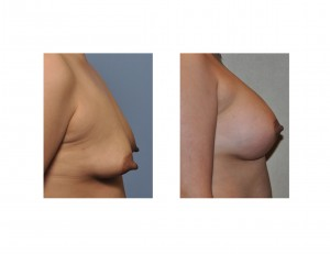 Female Nipple Reduction Dr Barry Eppley Indianapolis