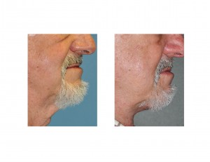 Male Direct Necklift result Dr Barry Eppley Indianapolis