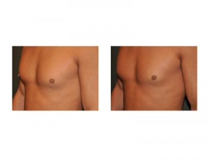 Male Nipple Reduction Surgery Results Dr Barry Eppley Indianapolis