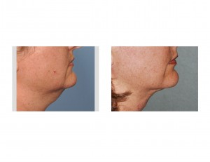 Neck Liposuction Dr Barry Eppley Indianapolis