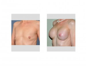 Older Breast Augmentation result oblique view Dr Barry Eppley Indianapolis