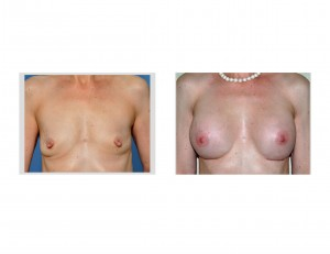Older Breast Augmentation results front view results Dr Barry Eppley Indianapolis