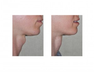 Tracheal Shave Dr Barry Eppley Indianapolis