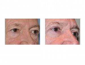 Upper Blepharoplasty Eyelid Lift Dr Barry Eppley Indianapolis