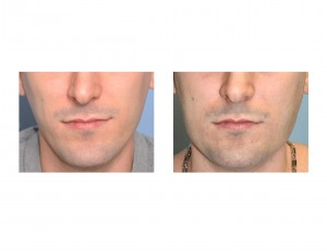 Vertical Lengthening Jaw Angle Implant results front view Dr Barry Eppley Indianapolis