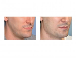 Vertical Lengthening Jaw Angle Implants result oblique view Dr Barry Eppley Indianapolis
