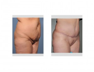 Full Tummy Tuck Dr Barry Eppley Indianapolisoblique view