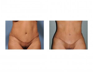 Secondary Liposuction after Tummy Tuck results front view Dr Barry Eppley Indianapolis