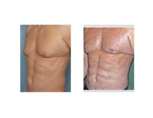 Abdominal Etching result oblique view Dr Barry Eppley Indianapolis