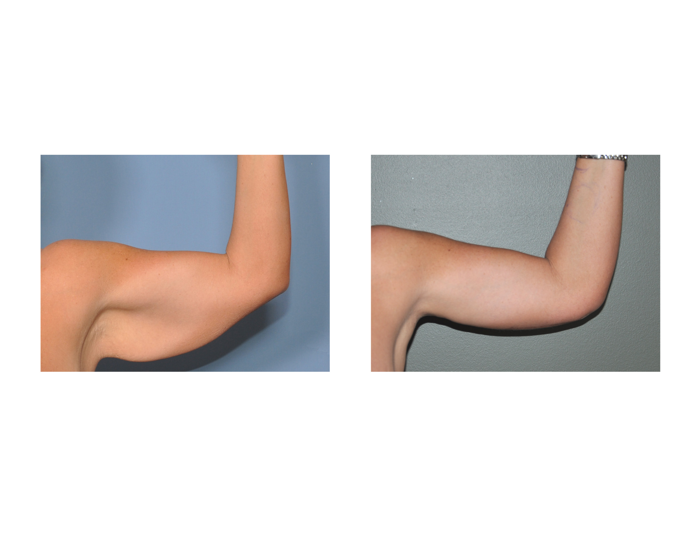 Scars From Upper Arm Lifts : Brachioplasty archives
