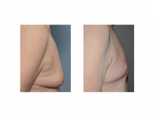 Gynecomastia Reduction and Nipple Transposition result side view