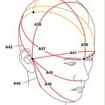 Head Measurements Dr Barry Eppley Indianapolis