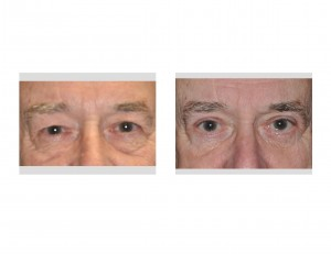 Older Male Eyelid Lift Results front view Dr Barry Eppley Indianapolis