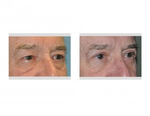 Older Male Eyelid Lift results oblique view Dr Barry Eppley