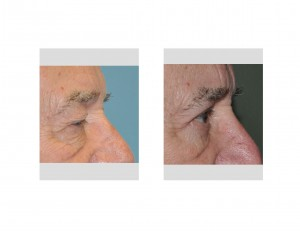 Older Male Eyelid Lift results side view Dr Barry Eppley Indianapolis
