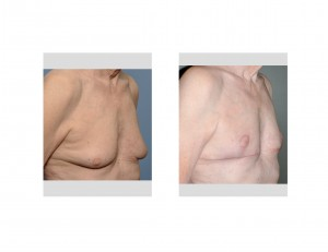 Older Male Gynecomastia Reduction with Nipple Lifts result Dr Barry Eppley Indianapolis