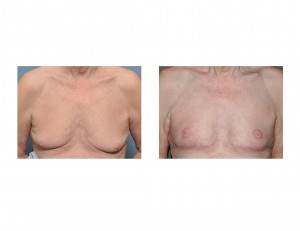 Older Male Gynecomastia Reduction with Nipple Transposition front view Dr Barry Eppley Indianapolis